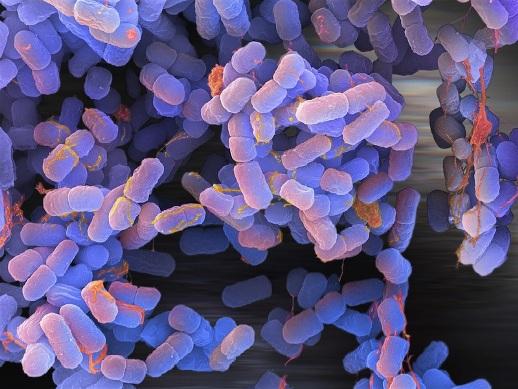 E-coli (1)
